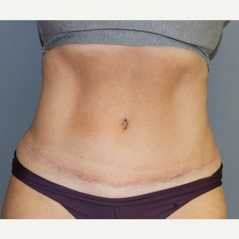 Tummy Tuck and Liposuction after 3027156