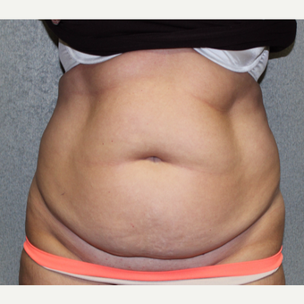 Tummy Tuck and Liposuction before 3027156