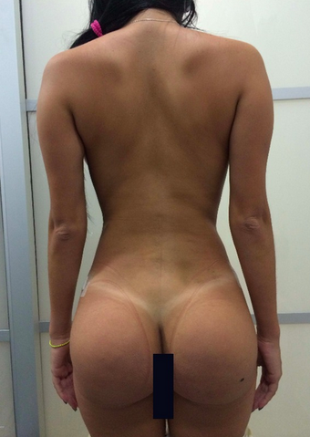 18-24 year old woman treated with Brazilian Butt Lift after 1844549