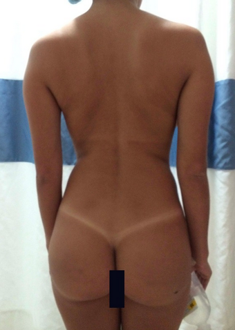 18-24 year old woman treated with Brazilian Butt Lift before 1844549