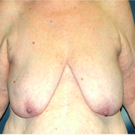 66 year old woman treated with Breast Lift with Implants before 3665859