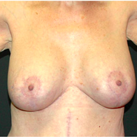 66 year old woman treated with Breast Lift with Implants after 3665859