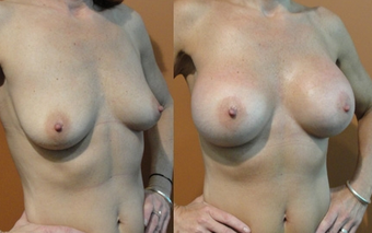 Breast Implants before 975861