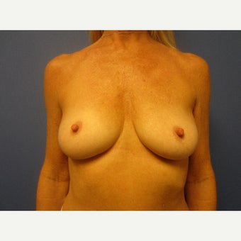 55-64 year old woman treated with Breast Augmentation before 1847066