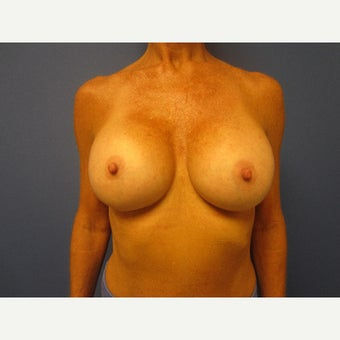55-64 year old woman treated with Breast Augmentation after 1847066