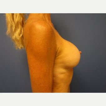 55-64 year old woman treated with Breast Augmentation 1847066