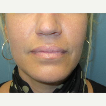 35-44 year old woman treated with Restylane Silk after 3724453