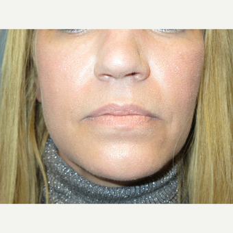 35-44 year old woman treated with Restylane Silk before 3724453