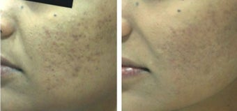 25-34 year old woman treated with Derma Roller before 1789340