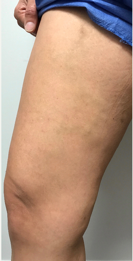 35-44 year old woman treated with EVLT