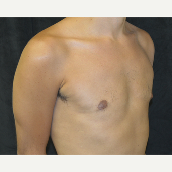 25-34 year old man treated with Male Breast Reduction after 3423928