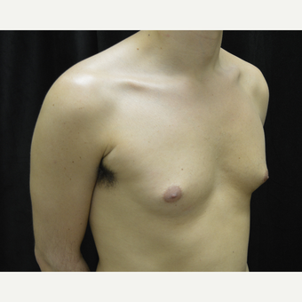 25-34 year old man treated with Male Breast Reduction before 3423928