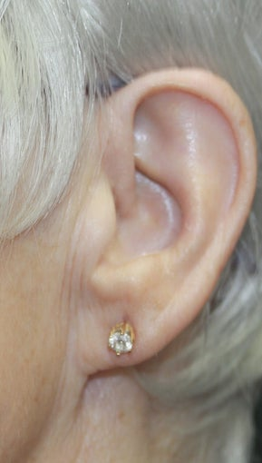 Procedure: Earlobe reduction after 1496661