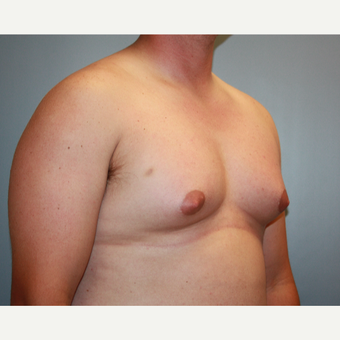 25-34 year old man treated with Male Breast Reduction before 3683186