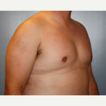 25-34 year old man treated with Male Breast Reduction after 3683186