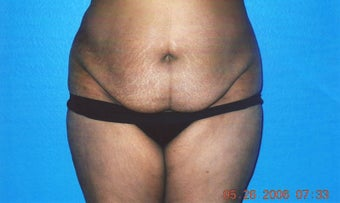 Tummy Tuck before 918002