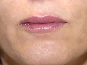 40 Year Old Female with Juvederm for Lips after 1139969