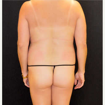 41 year old who underwent liposuction of the back and posterior flanks before 3241021
