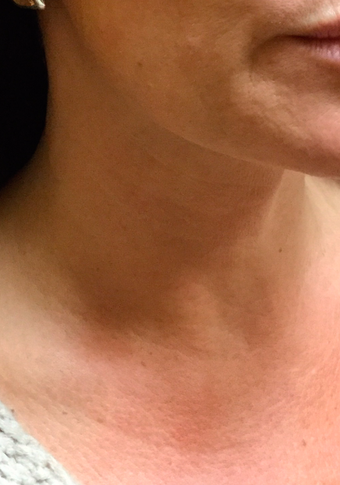 45-54yo Woman treated with Belotero for Necklace Lines (horizontal lines wrapping around neck)