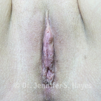 25-34 year old woman treated with Labiaplasty after 3494749