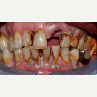 55-64 year old man - replacemenet of front tooth - following trauma before 3096967