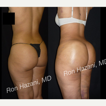 18-24 year old woman treated with Brazilian Butt Lift before 3680447