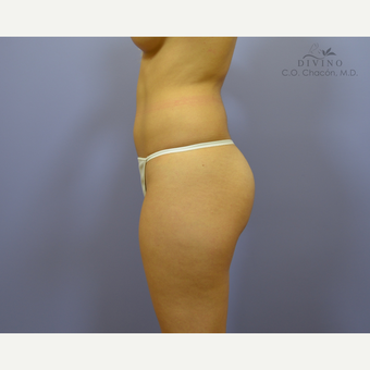 18-24 year old woman treated with Butt Implants before 3421251