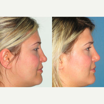 25-34 year old woman treated with Revision Rhinoplasty after 3521343