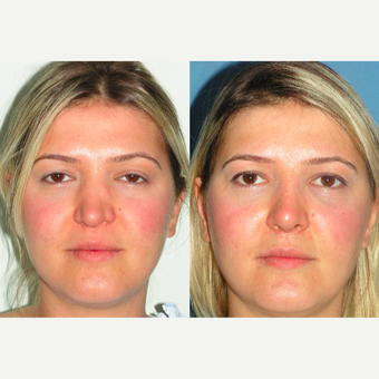 25-34 year old woman treated with Revision Rhinoplasty before 3521343