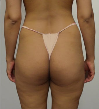 25-34 year old woman treated with Butt Lift before 2062912