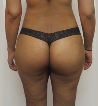 25-34 year old woman treated with Butt Lift after 2062912