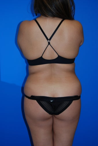 Upper / lower back and flank liposuction before 982396