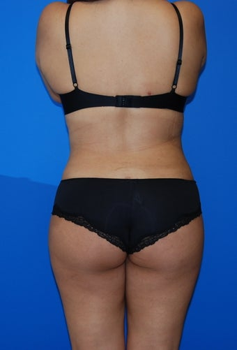 Upper / lower back and flank liposuction after 982396