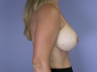 41 yr old breast implant revision before 1060869