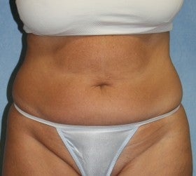 Tummy Tuck before 628525