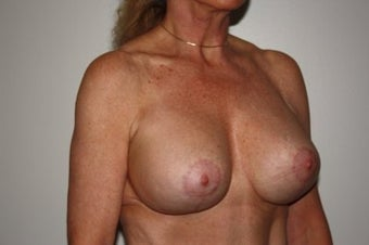 Breast Lift w/ Implants  after 213092
