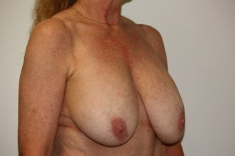 Breast Lift w/ Implants  before 213092