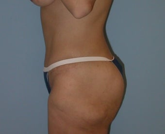 41 year old woman treated with Tummy Tuck after 3142117