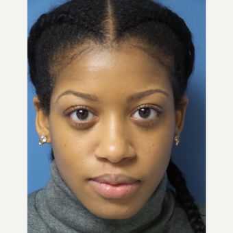 25-34 year old woman treated with African American Rhinoplasty before 3098221