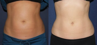 Before and After CoolSculpting before 1033831
