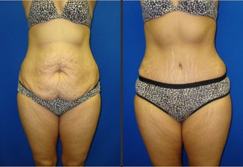 Tummy Tuck before 340565