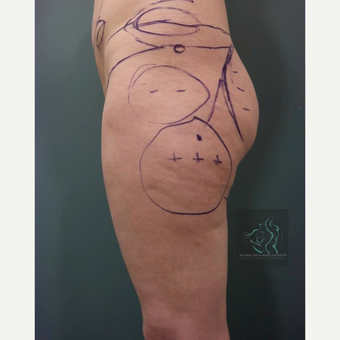 35-44 year old man treated with Butt Augmentation before 3076095