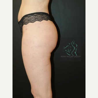 35-44 year old man treated with Butt Augmentation after 3076095