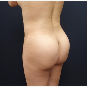 25-34 year old woman treated with Power-Assisted Liposuction (PAL) before 3286505