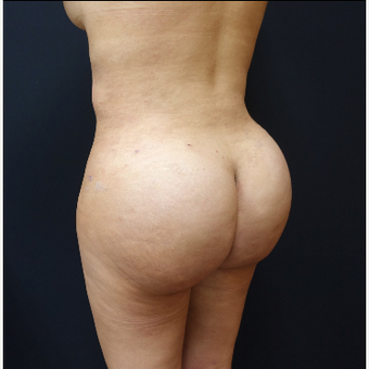25-34 year old woman treated with Power-Assisted Liposuction (PAL) after 3286505