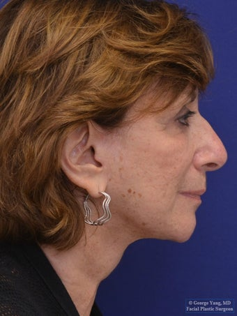 Facelift and Necklift (corset platysmaplasty & suture suspension) 1 year Post-Op- Right Profile View