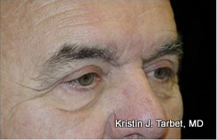 65-74 year old man treated with Eyelid Retraction Repair after 3524612