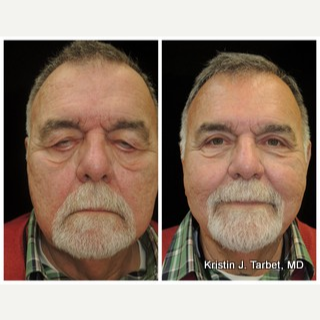 65-74 year old man treated with Eyelid Retraction Repair 3524612