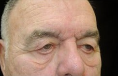 65-74 year old man treated with Eyelid Retraction Repair before 3524612