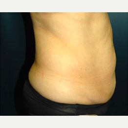 64 year old woman treated with Tummy Tuck before 3578407